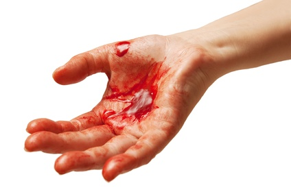 cut tip of finger off how to stop bleeding